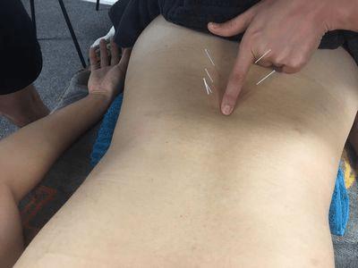 外国人でも鍼灸は大事な治療法です。